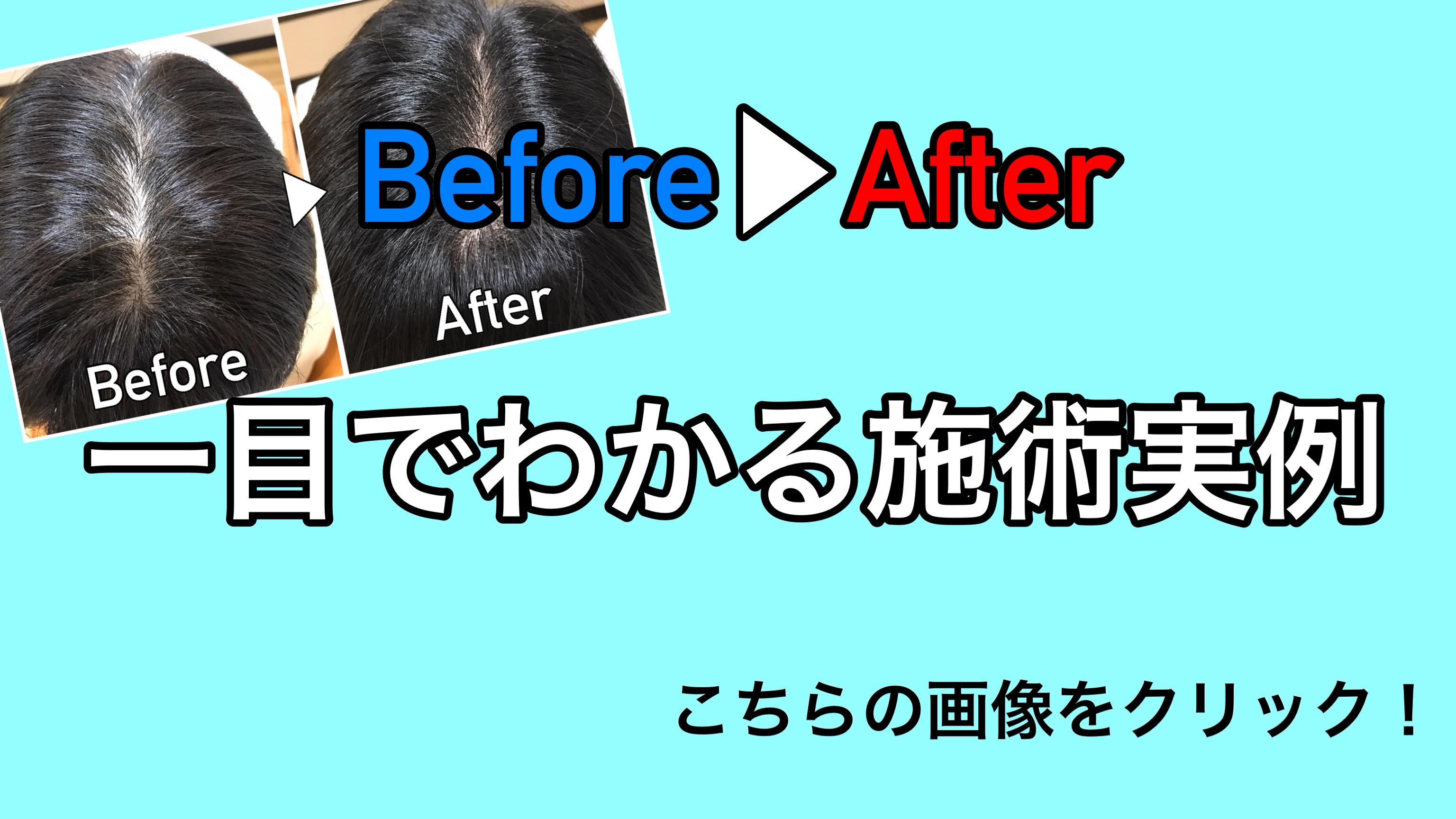 南浦和で白髪染めに特化した美容室の実例