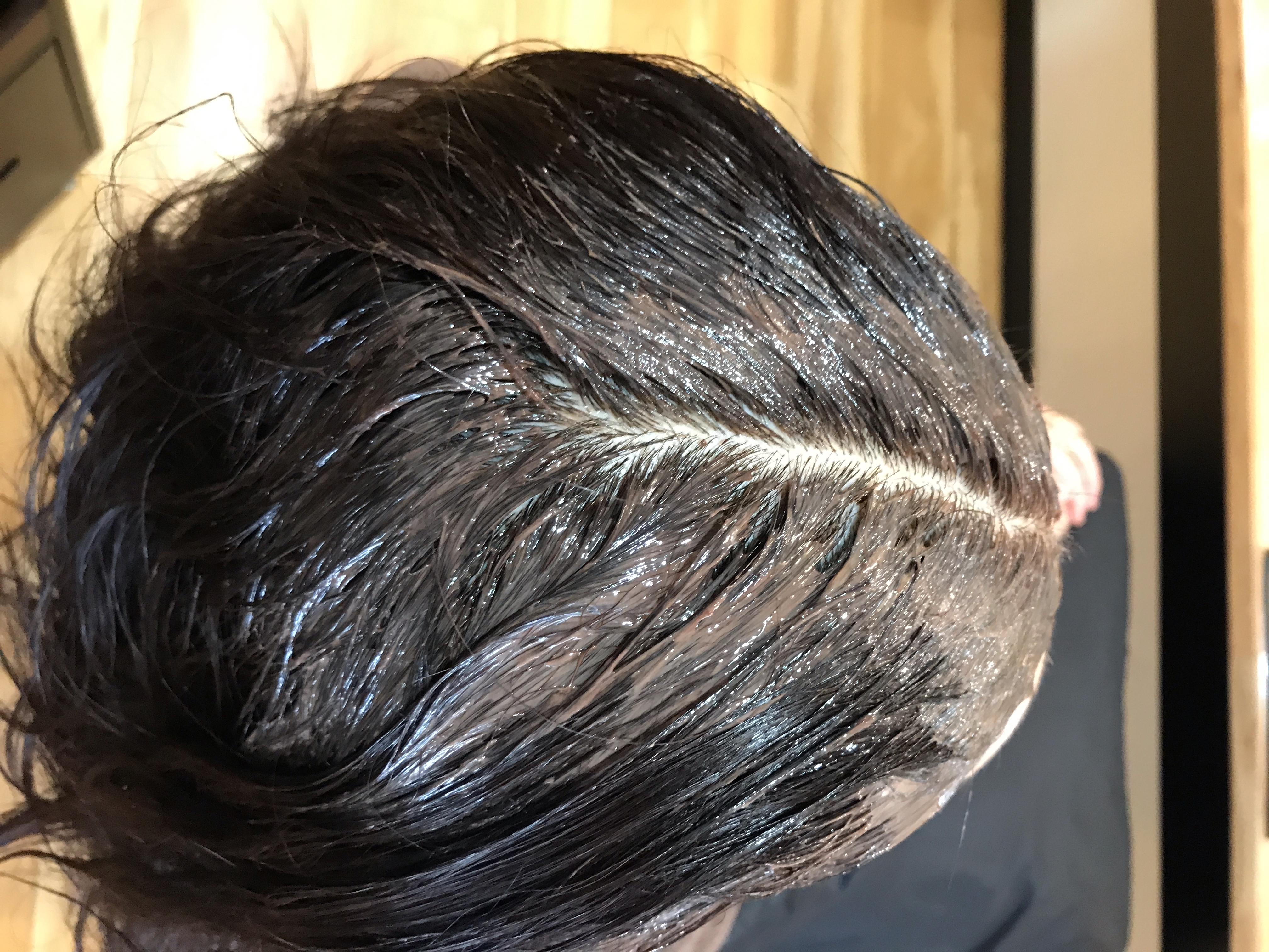 アトピー性皮膚炎で白髪染めの刺激に悩む方の染める方法を解説します