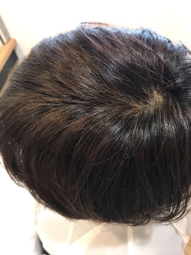 白髪染めで強く刺激を感じている方がヘナ染めに切り替えた結果