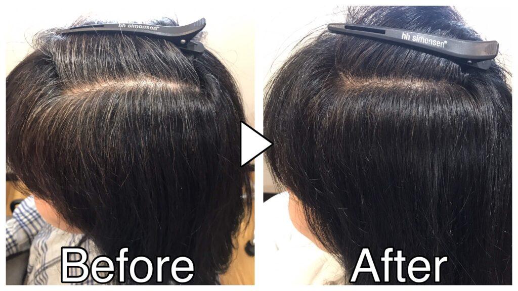 塩基性カラーでの白髪染め前後の比較写真