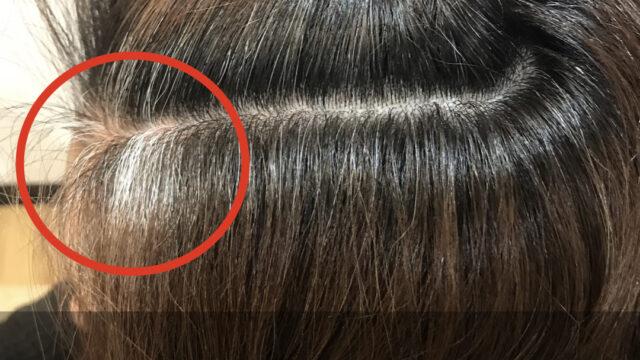 顔まわりに白髪が多い理由と染める際に気をつけるべきこと