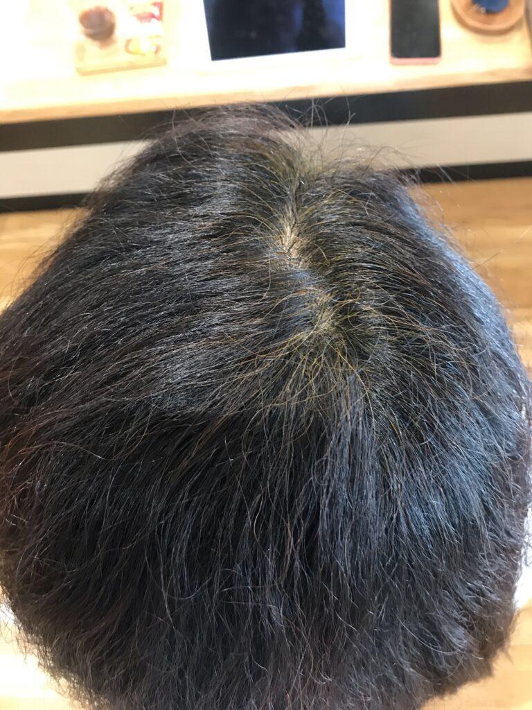 過去にヘナの2度染めで痒くなった経験がありますが染められますか?
