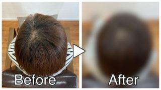【ノンジアミンカラー実例】白髪染めにアレルギーがある方が染める方法