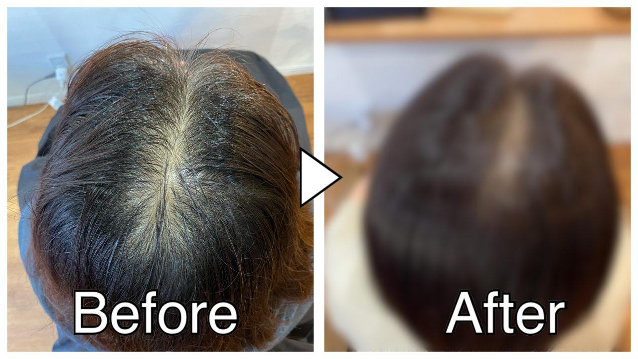 【ノンジアミン実例】ジアミンアレルギーでも白髪を染められる?